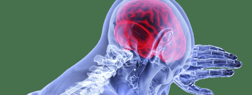 CBD Neurodegeneration